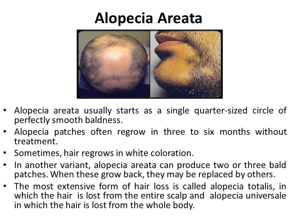 Alopecia Areata Alopecia areata usually starts as a single quarter-sized circle of perfectly smooth baldness. Alopecia patches often regrow in three t