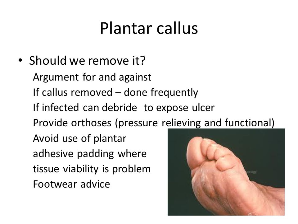 Plantar callus Should we remove it? Argument for and against If callus removed – done frequently If infected can debride to expose ulcer Provide ortho