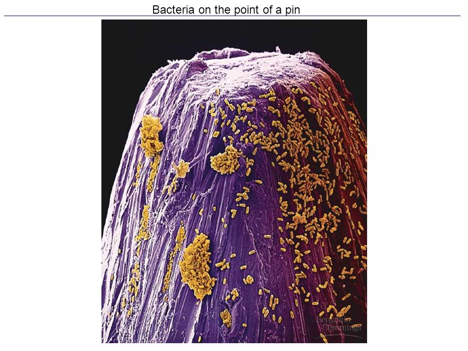 Bacteria on the point of a pin