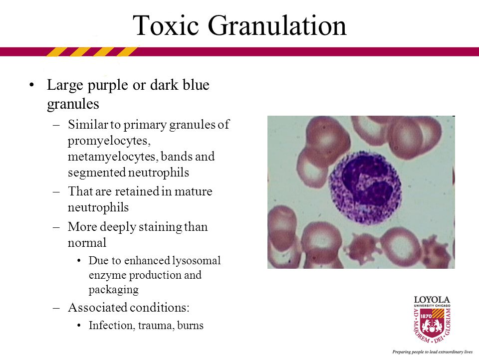 Toxic Granulation Large purple or dark blue granules –Similar to primary granules of promyelocytes, metamyelocytes, bands and segmented neutrophils –That are retained in mature neutrophils –More deeply staining than normal Due to enhanced lysosomal enzyme production and packaging –Associated conditions: Infection, trauma, burns