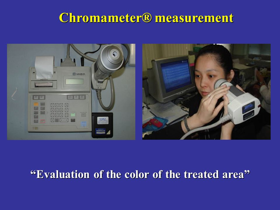 """Evaluation of the color of the treated area"" Chromameter® measurement"