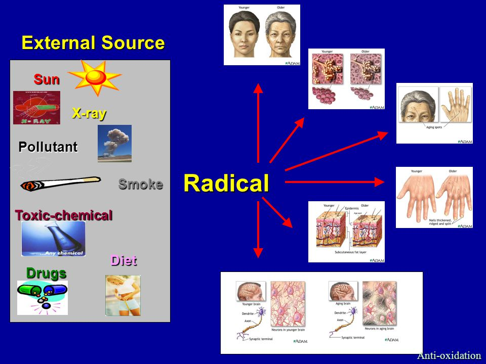 Radical Toxic-chemical Sun X-ray Pollutant Smoke Diet Drugs External Source Anti-oxidation