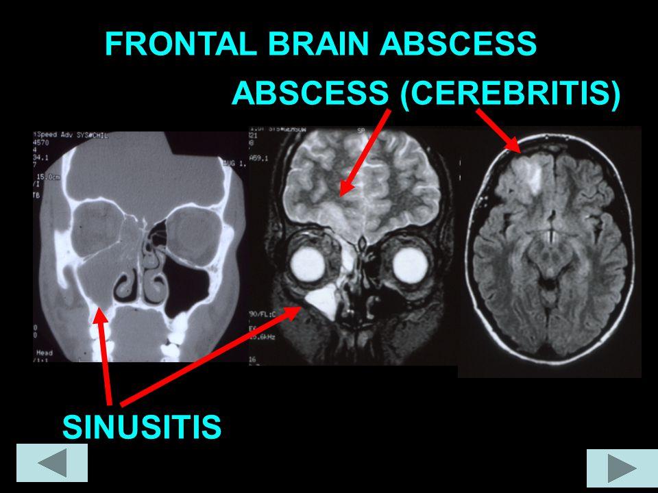 FRONTAL BRAIN ABSCESS SINUSITIS ABSCESS (CEREBRITIS)