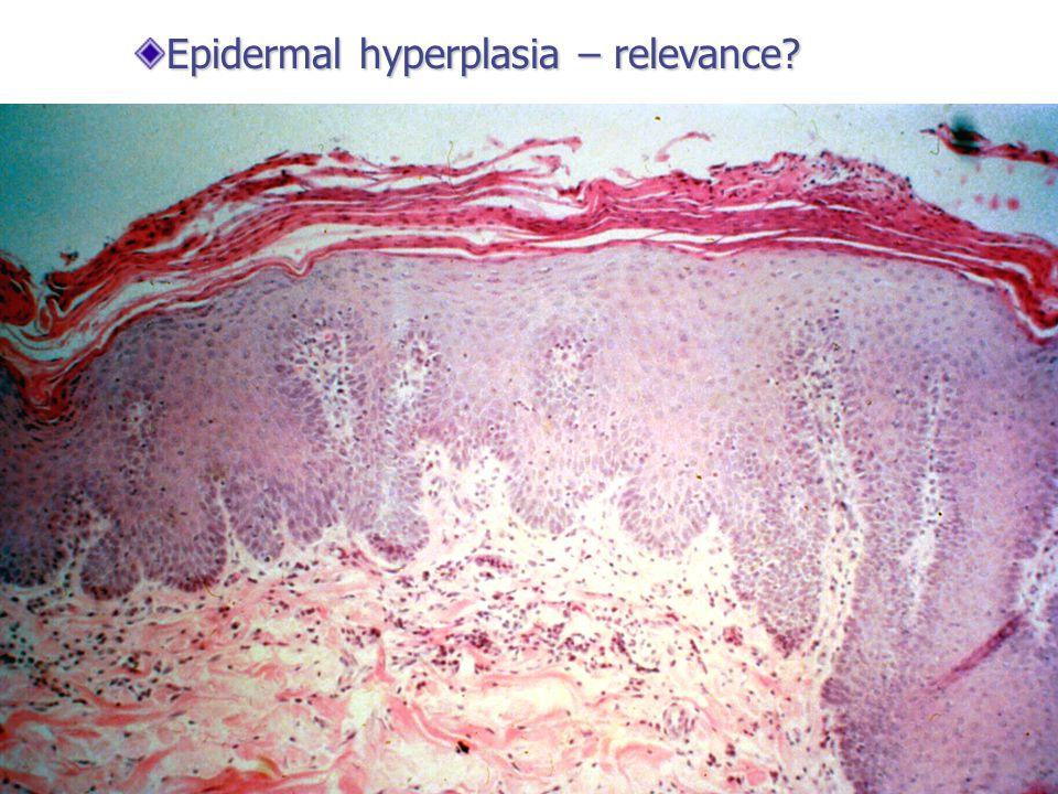 Epidermal hyperplasia – relevance?