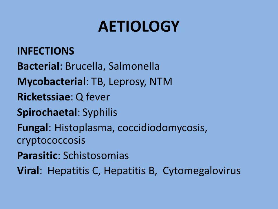 AETIOLOGY INFECTIONS Bacterial: Brucella, Salmonella Mycobacterial: TB, Leprosy, NTM Ricketssiae: Q fever Spirochaetal: Syphilis Fungal: Histoplasma, coccidiodomycosis, cryptococcosis Parasitic: Schistosomias Viral: Hepatitis C, Hepatitis B, Cytomegalovirus
