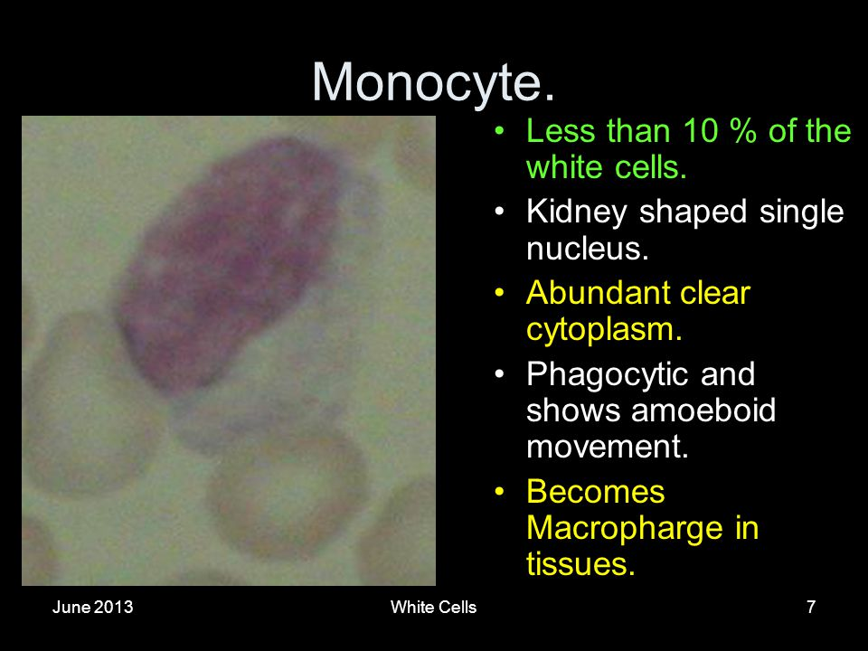 June 2013White Cells7 Monocyte. Less than 10 % of the white cells.