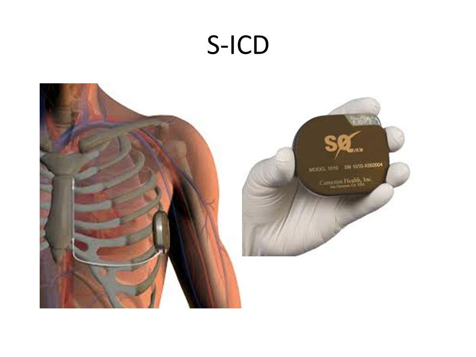 S-ICD