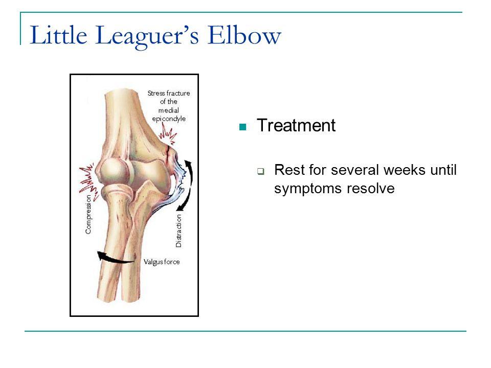 Little Leaguer's Elbow Treatment  Rest for several weeks until symptoms resolve