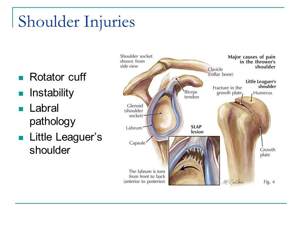 Shoulder Injuries Rotator cuff Instability Labral pathology Little Leaguer's shoulder