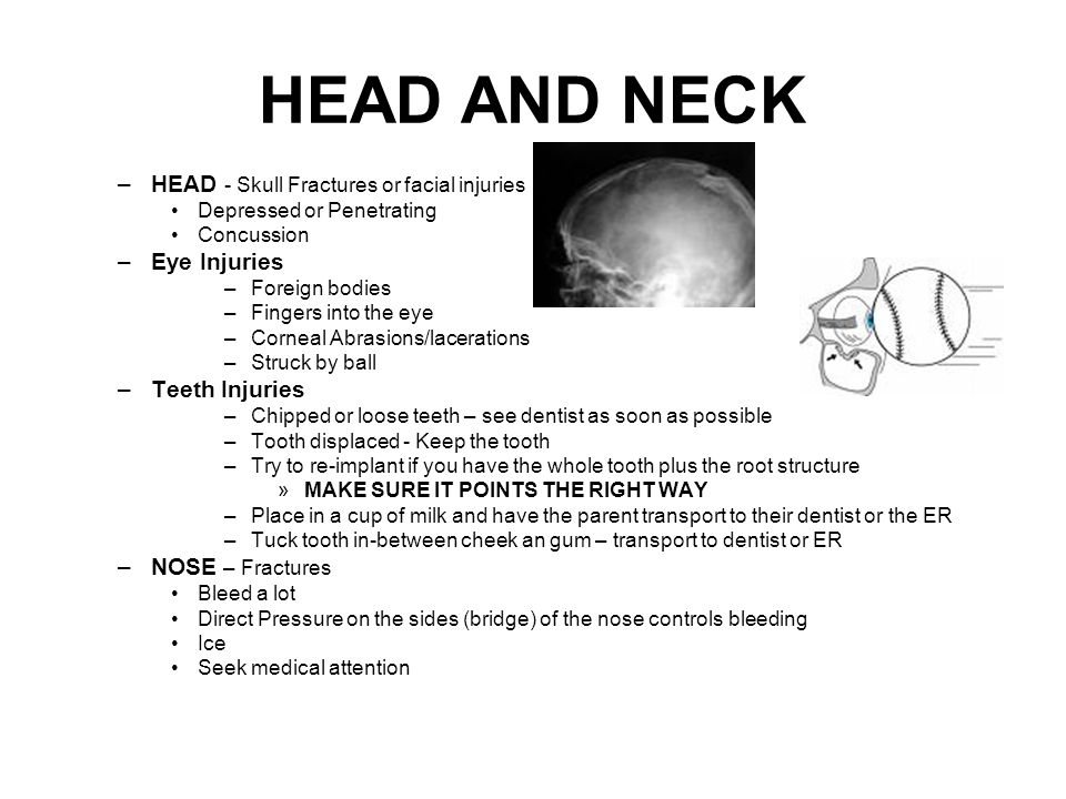 HEAD AND NECK –HEAD - Skull Fractures or facial injuries Depressed or Penetrating Concussion –Eye Injuries –Foreign bodies –Fingers into the eye –Corneal Abrasions/lacerations –Struck by ball –Teeth Injuries –Chipped or loose teeth – see dentist as soon as possible –Tooth displaced - Keep the tooth –Try to re-implant if you have the whole tooth plus the root structure »MAKE SURE IT POINTS THE RIGHT WAY –Place in a cup of milk and have the parent transport to their dentist or the ER –Tuck tooth in-between cheek an gum – transport to dentist or ER –NOSE – Fractures Bleed a lot Direct Pressure on the sides (bridge) of the nose controls bleeding Ice Seek medical attention