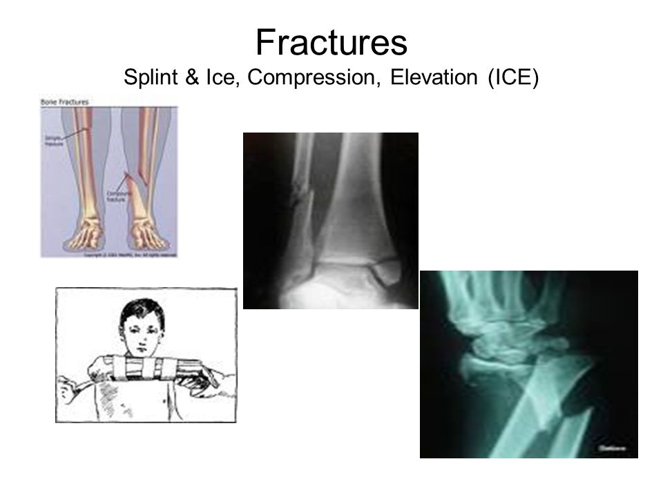 Fractures Splint & Ice, Compression, Elevation (ICE)