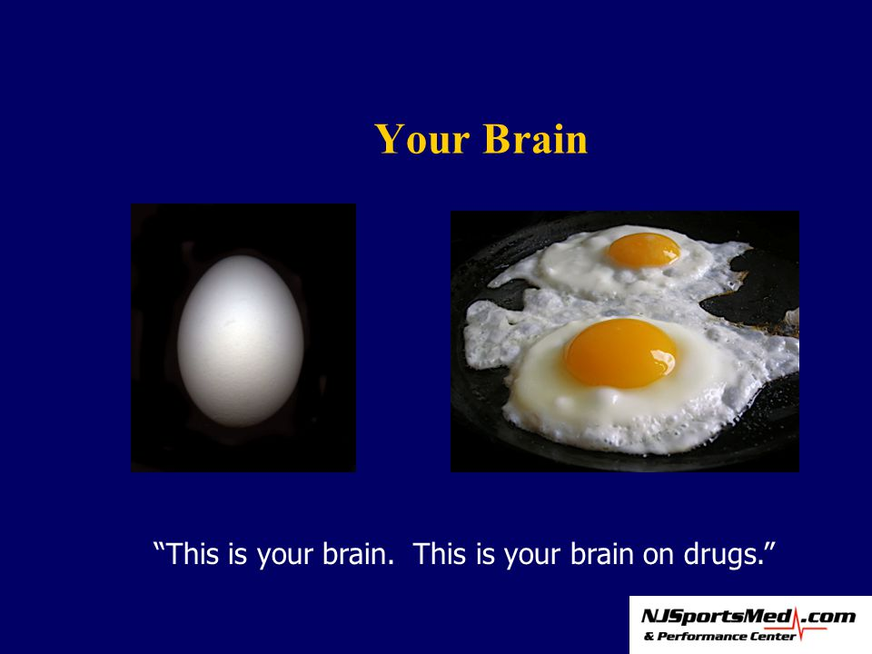 Your Brain This is your brain. This is your brain on drugs.