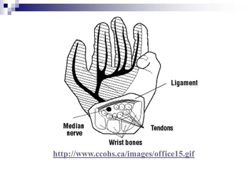 Scaphoid Fracture (1) ________________________________ Lies beneath the anatomical snuff box Does not have a good blood supply – often does not heal – non-union