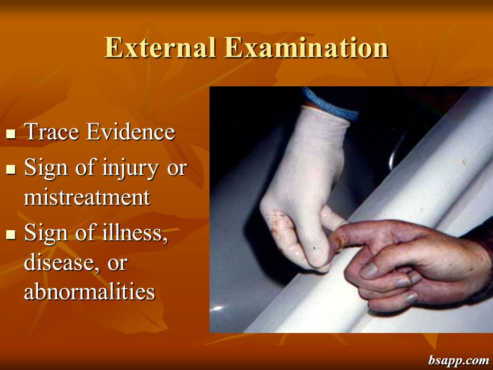 External Examination Trace Evidence Trace Evidence Sign of injury or mistreatment Sign of injury or mistreatment Sign of illness, disease, or abnormal