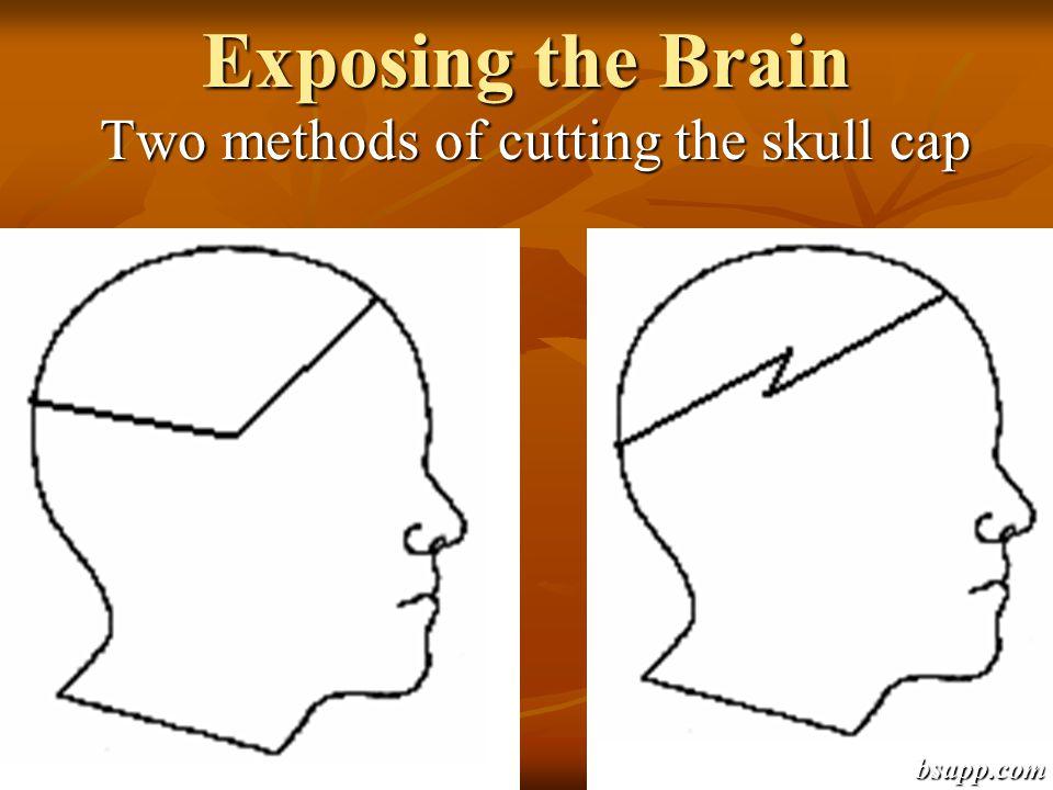 Exposing the Brain Two methods of cutting the skull cap bsapp.com