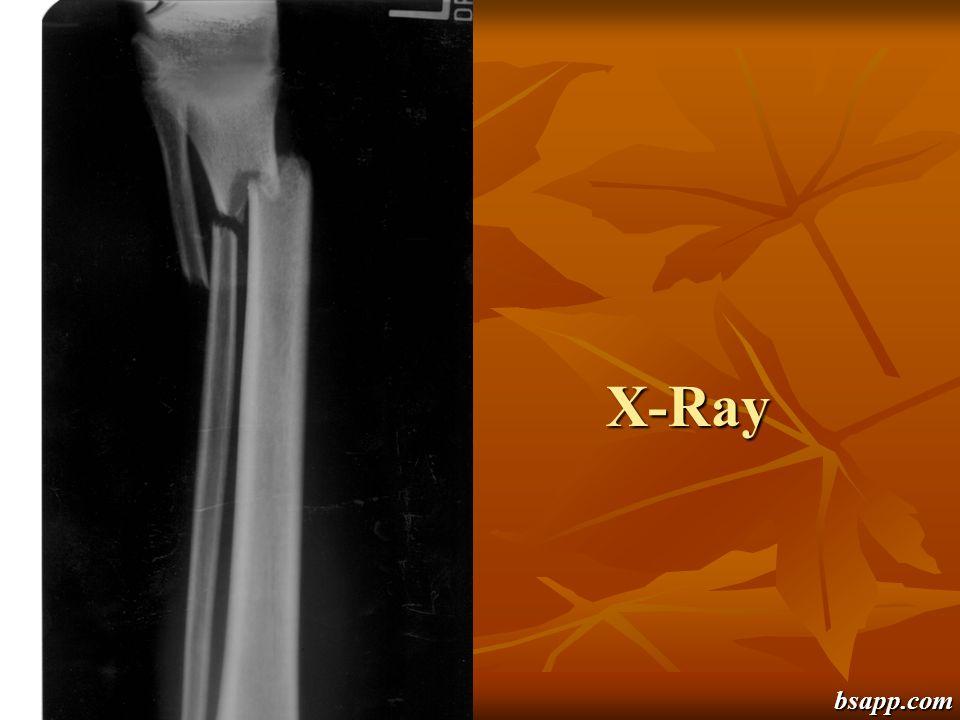 X-Ray bsapp.com
