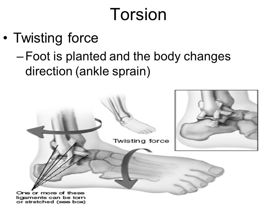 Torsion Twisting force –Foot is planted and the body changes direction (ankle sprain)