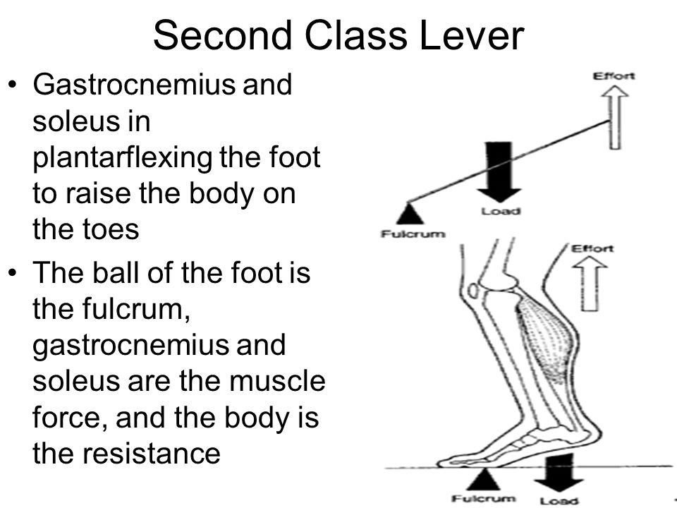 Second Class Lever Gastrocnemius and soleus in plantarflexing the foot to raise the body on the toes The ball of the foot is the fulcrum, gastrocnemius and soleus are the muscle force, and the body is the resistance