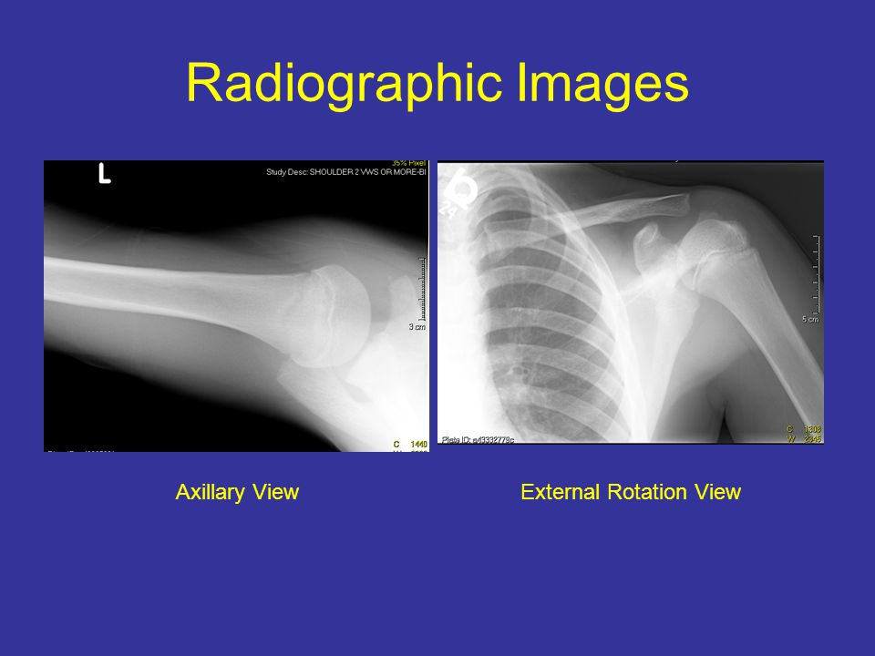 Radiographic Images Axillary ViewExternal Rotation View