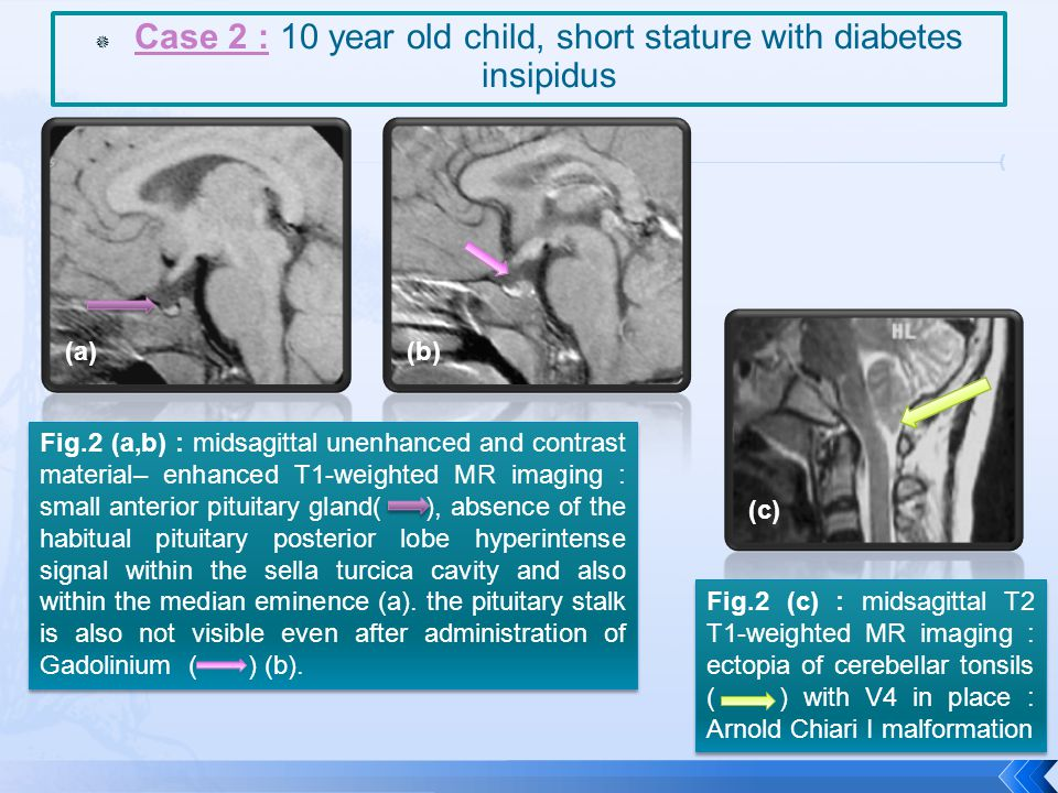  Case 2 : 10 year old child, short stature with diabetes insipidus Fig.2 (a,b) : midsagittal unenhanced and contrast material– enhanced T1-weighted M