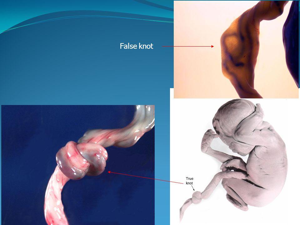 False knot