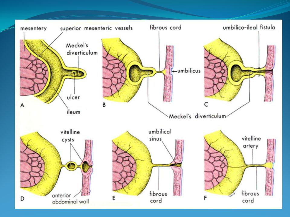 Structures forming the primitive umbilical cord (Summary) 1.