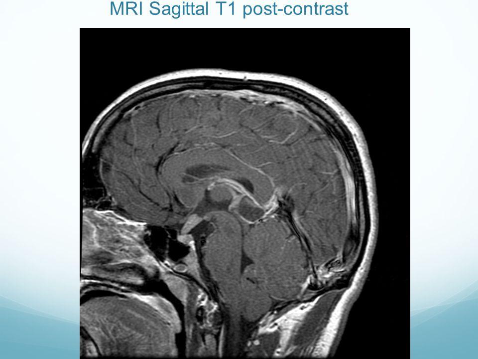 MRI Sagittal T1 post-contrast