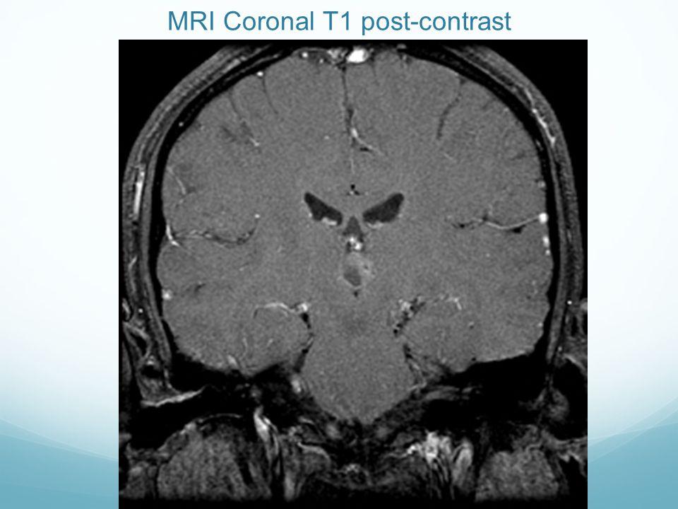MRI Coronal T1 post-contrast
