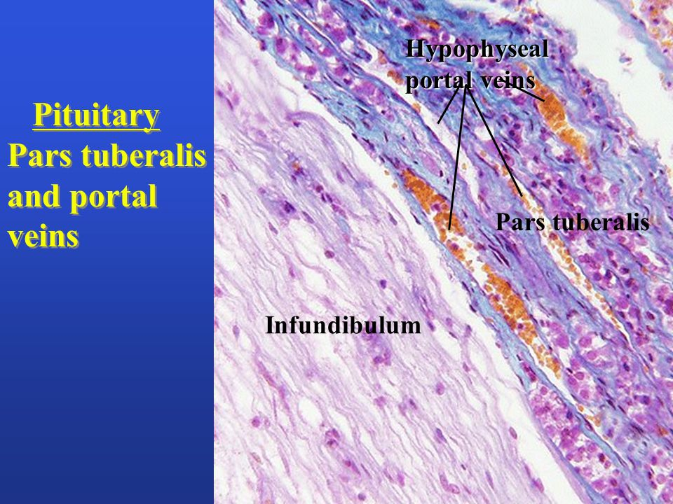 Infundibulum Pars tuberalis Pituitary Pars tuberalis and portal veins Pituitary Pars tuberalis and portal veins Hypophyseal portal veins