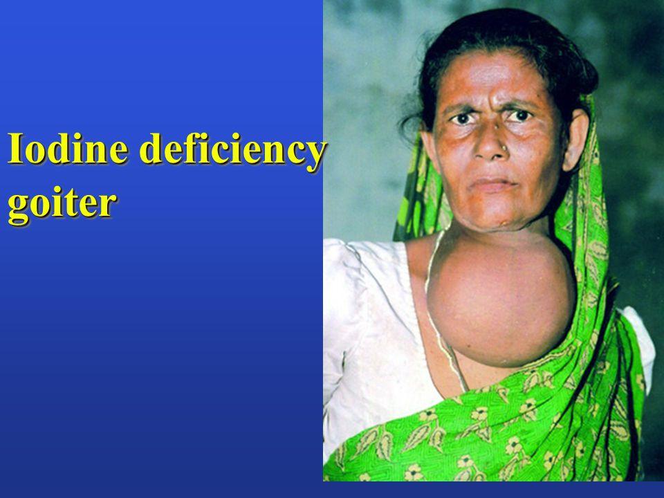 Iodine deficiency goiter goiter