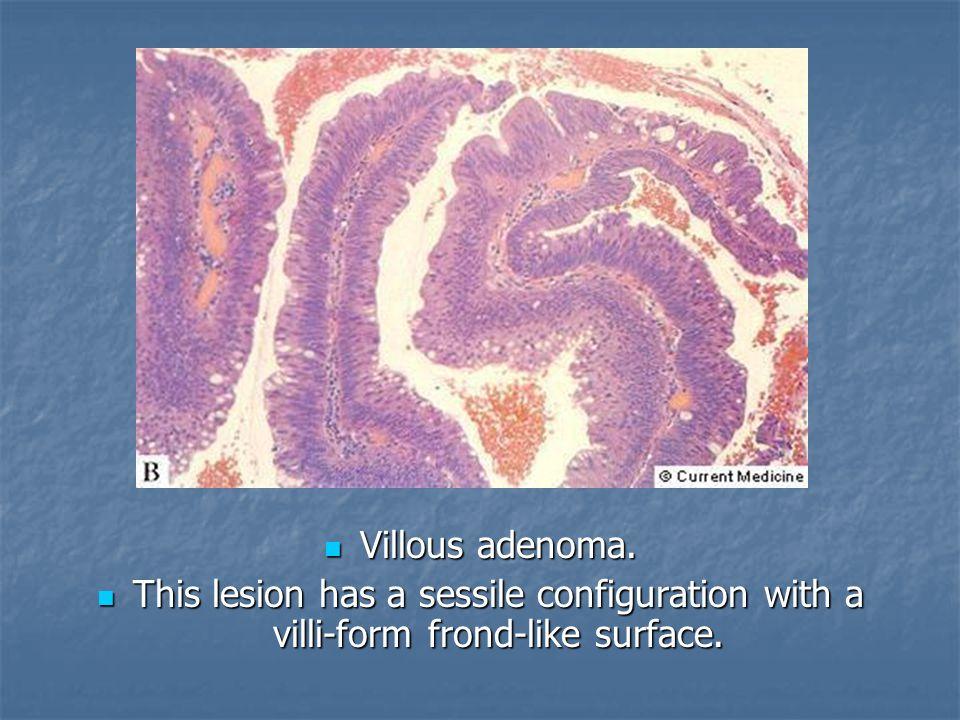 Villous adenoma. Villous adenoma. This lesion has a sessile configuration with a villi-form frond-like surface. This lesion has a sessile configuratio