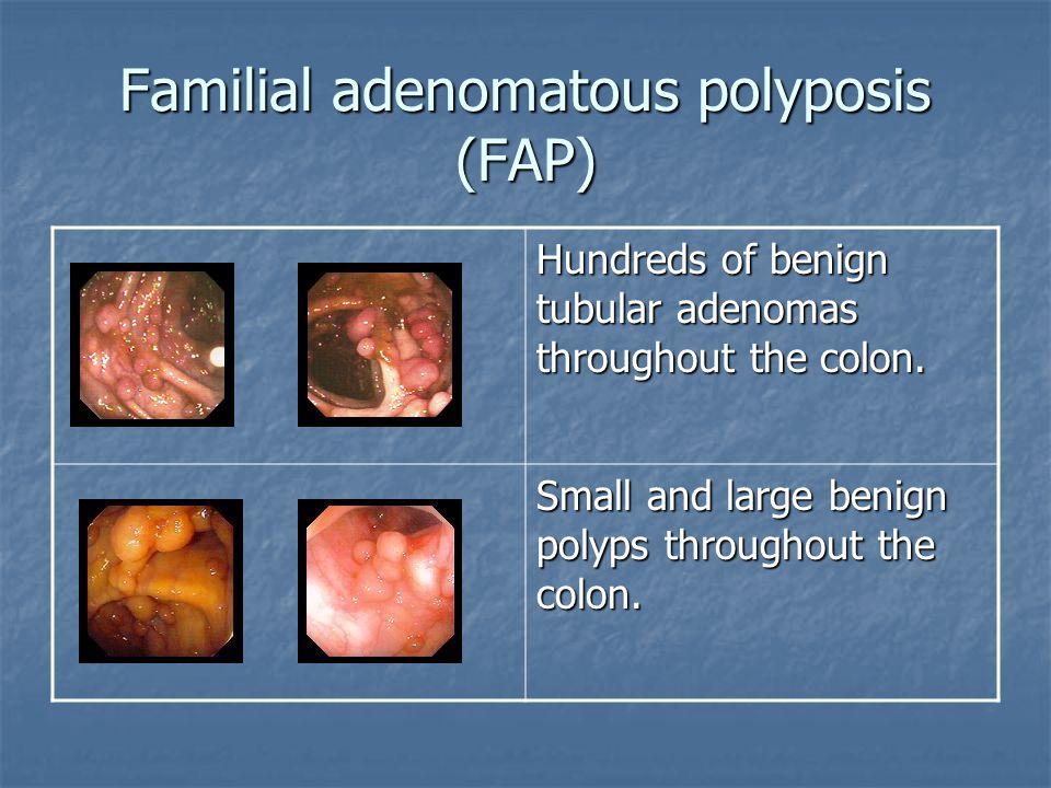 Familial adenomatous polyposis (FAP) Hundreds of benign tubular adenomas throughout the colon. Small and large benign polyps throughout the colon.