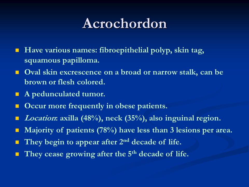 Acrochordon Have various names: fibroepithelial polyp, skin tag, squamous papilloma. Oval skin excrescence on a broad or narrow stalk, can be brown or