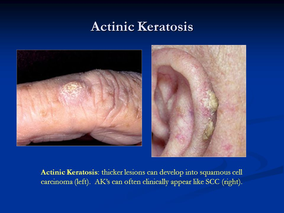 Actinic Keratosis Actinic Keratosis: thicker lesions can develop into squamous cell carcinoma (left). AK's can often clinically appear like SCC (right