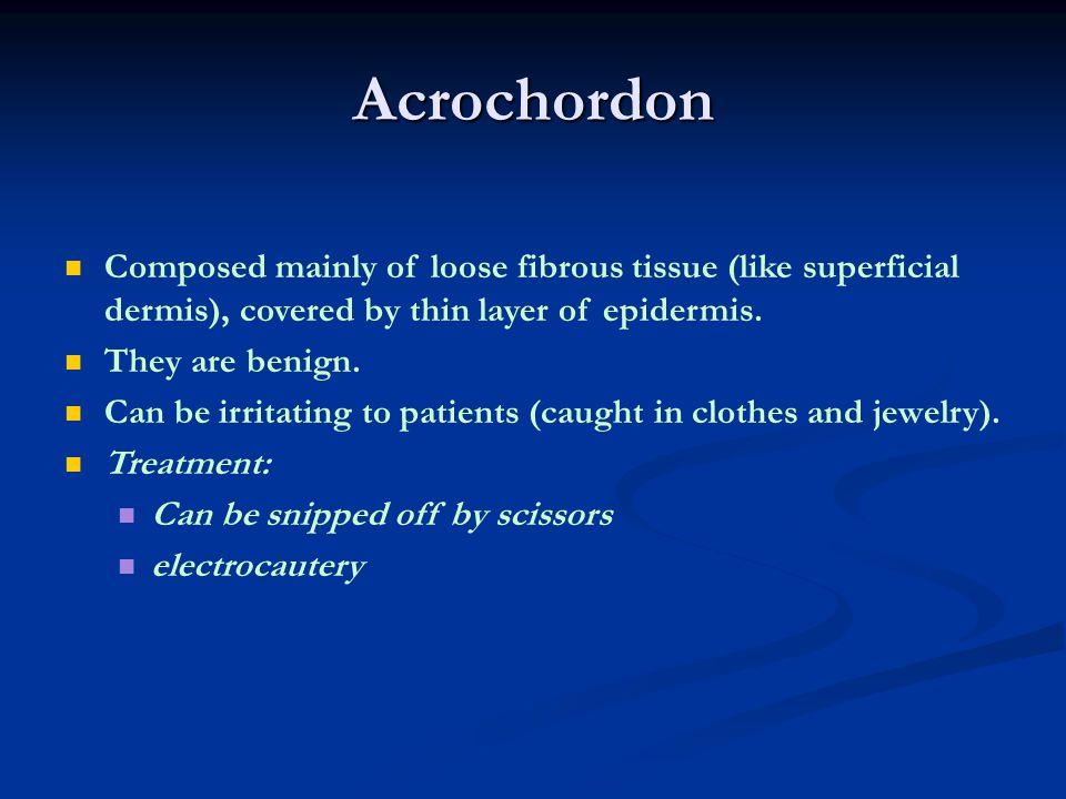 Acrochordon Acrochordon: skin tags. Round, black-colored, fleshy excrescences on a broad or narrow stalk (left).
