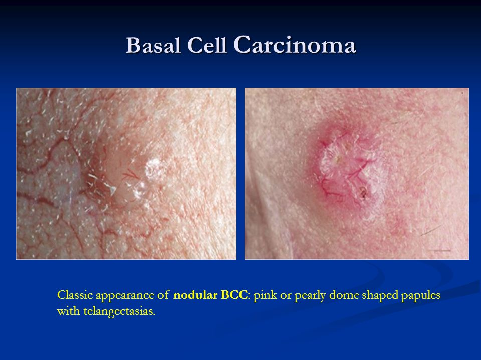 Basal Cell Carcinoma Classic appearance of nodular BCC: pink or pearly dome shaped papules with telangectasias.