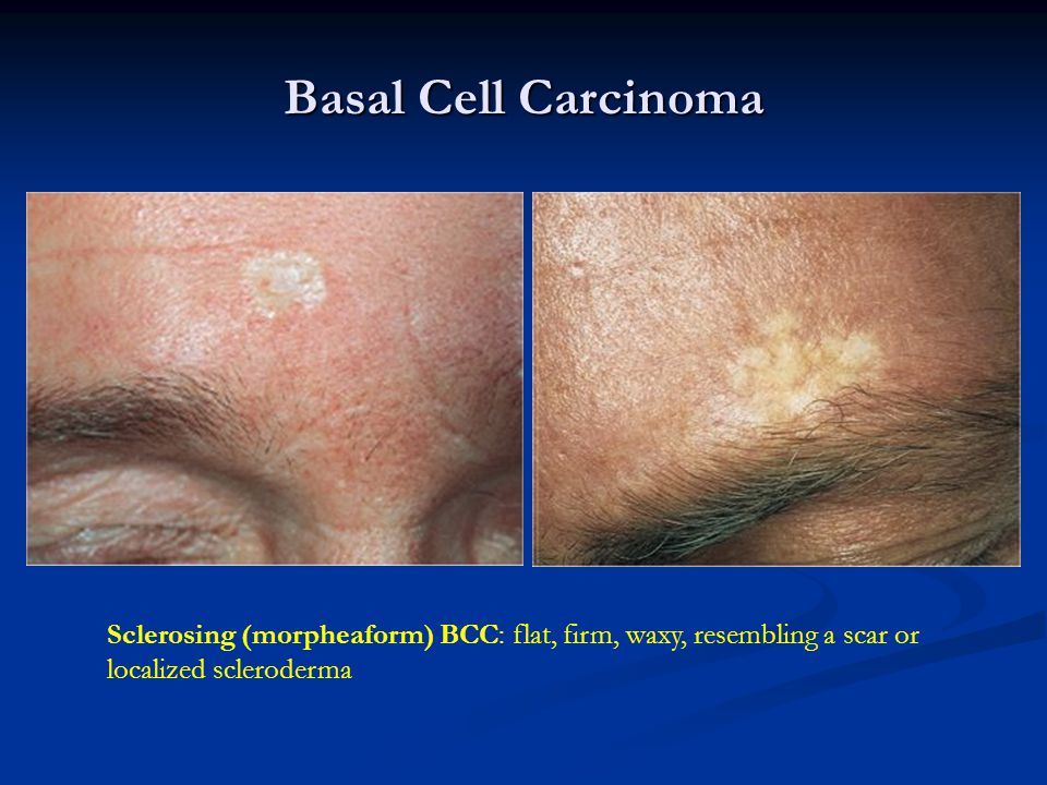 Basal Cell Carcinoma Sclerosing (morpheaform) BCC: flat, firm, waxy, resembling a scar or localized scleroderma