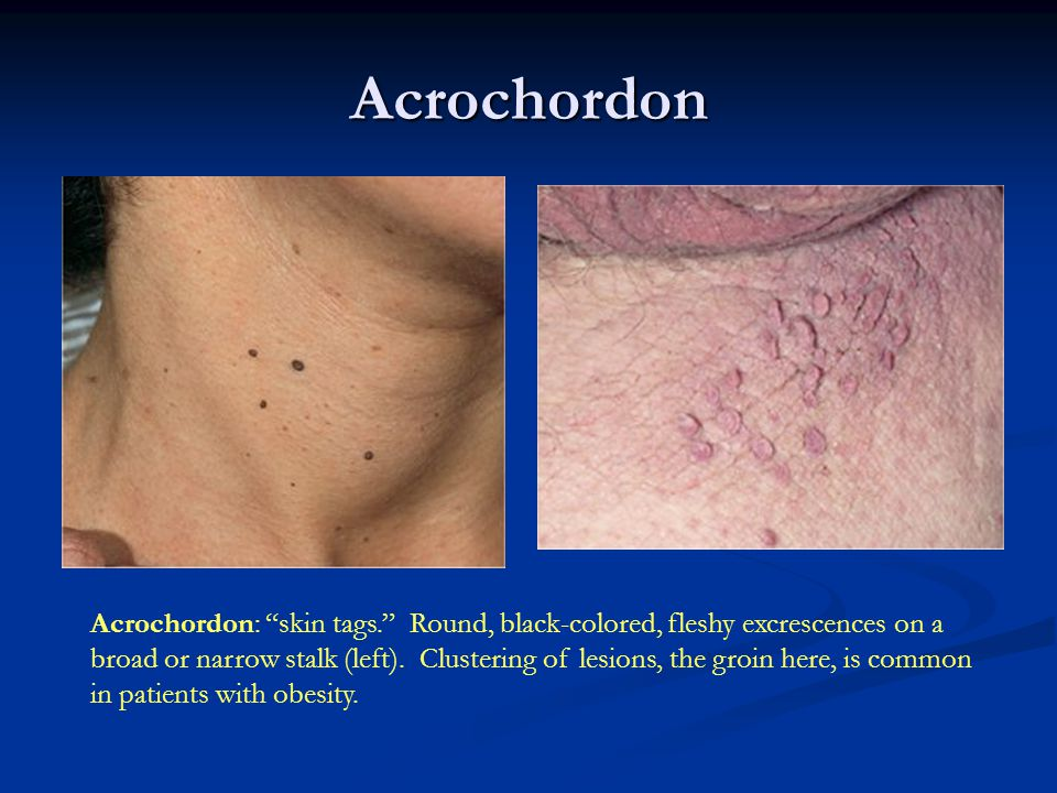 Seborrheic Keratosis: Inflammed SK's Seborrheic Keratosis: Often only one lesion is inflammed, but many can become inflamed at once (left).