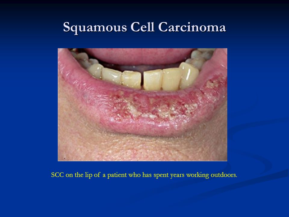 Squamous Cell Carcinoma SCC on the lip of a patient who has spent years working outdoors.