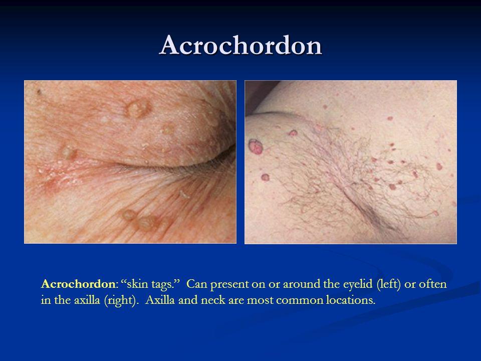 The most common benign skin neoplasm.No malignant potential.