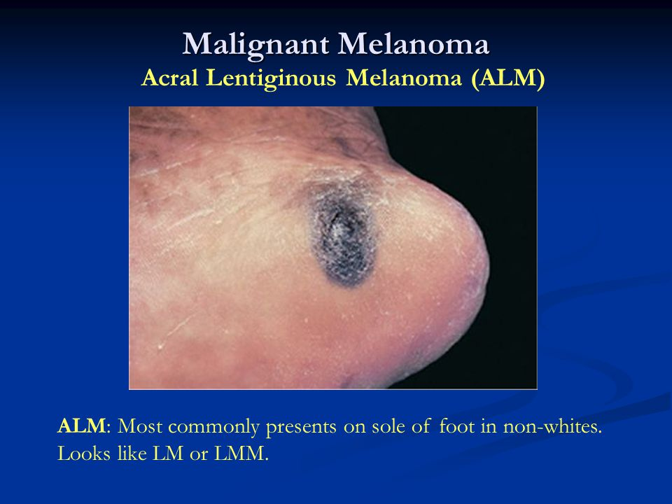 Malignant Melanoma Acral Lentiginous Melanoma (ALM) ALM: Most commonly presents on sole of foot in non-whites. Looks like LM or LMM.