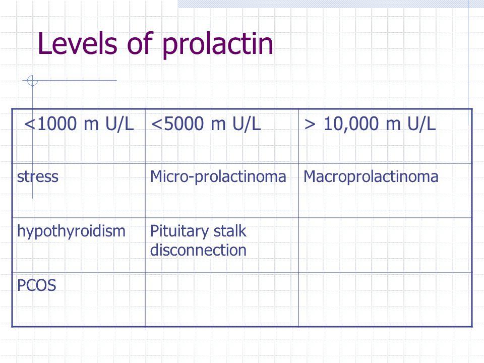 Levels of prolactin <1000 m U/L<5000 m U/L> 10,000 m U/L stressMicro-prolactinomaMacroprolactinoma hypothyroidismPituitary stalk disconnection PCOS