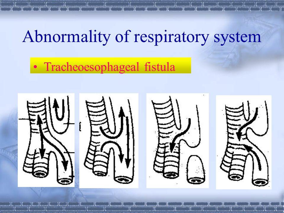 Pulmonary alveoli Stroma Mesenchyme Lung bud Lengthen Bronchia and their branches