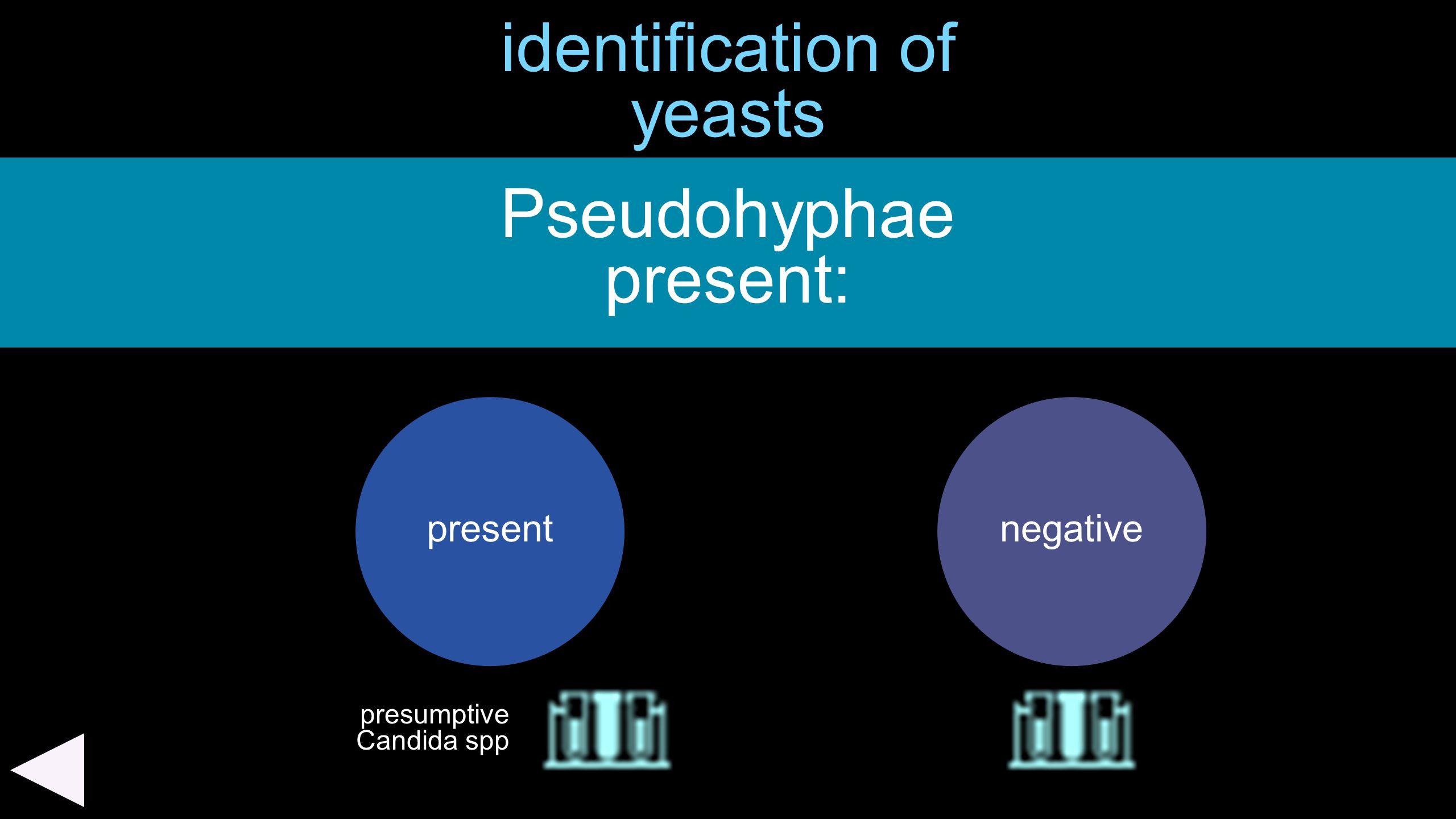 identification of yeasts Pseudohyphae present: presentnegative presumptive Candida spp
