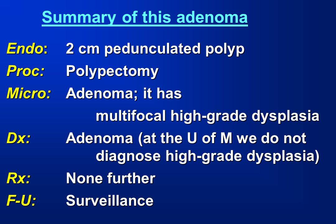 Endo:2 cm pedunculated polyp Proc:Polypectomy Micro:Adenoma; it has multifocal high-grade dysplasia multifocal high-grade dysplasia Dx: Adenoma (at th
