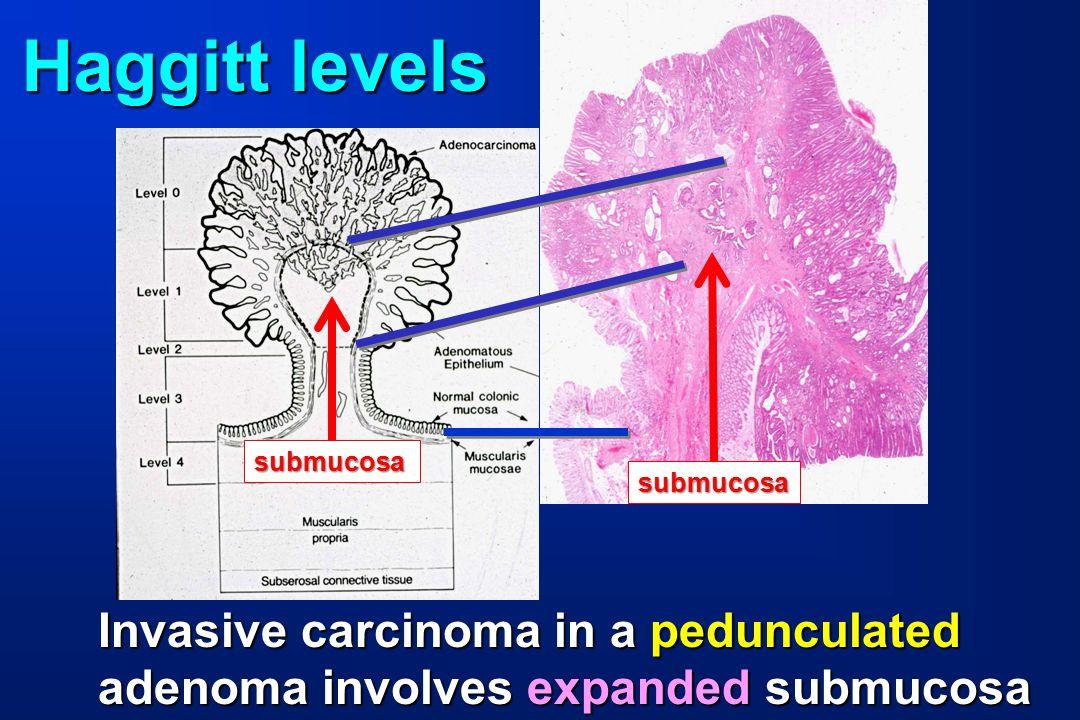 Haggitt levels Invasive carcinoma in a pedunculated adenoma involves expanded submucosa submucosa submucosa