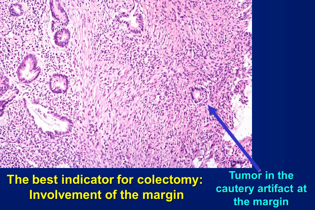 The best indicator for colectomy: Involvement of the margin Tumor in the cautery artifact at the margin