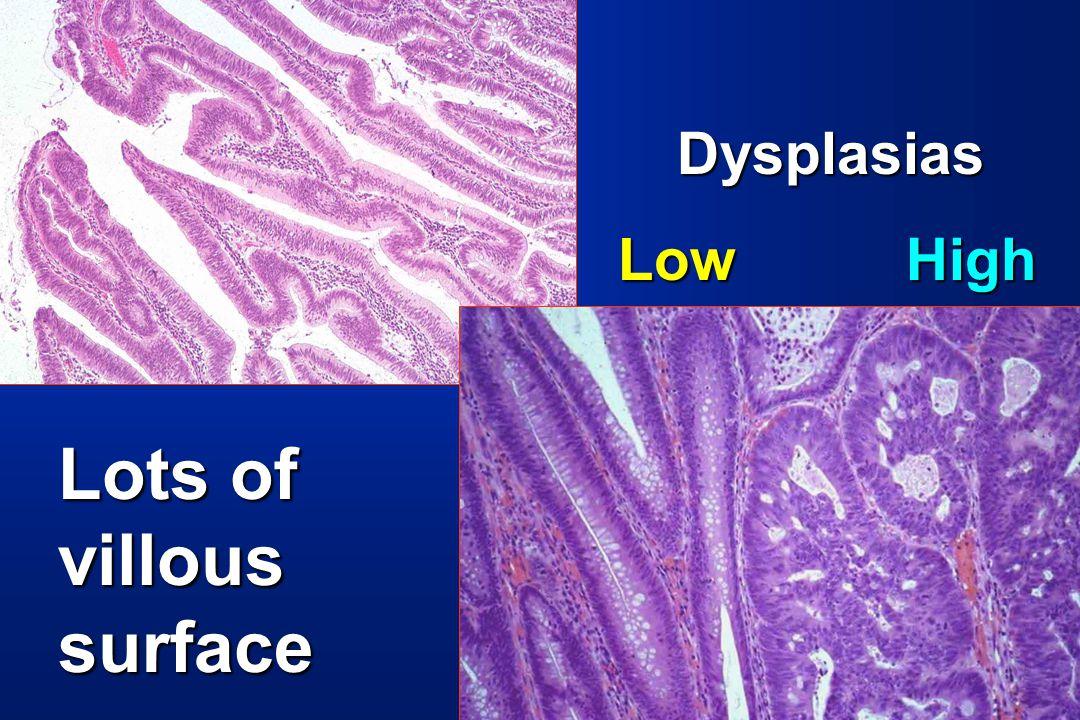 Lots of villous surface Dysplasias Dysplasias LowHigh