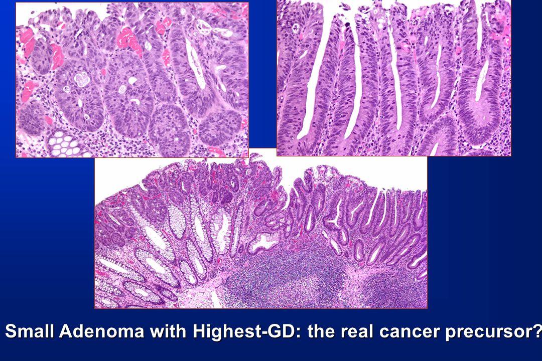 Small Adenoma with Highest-GD: the real cancer precursor?