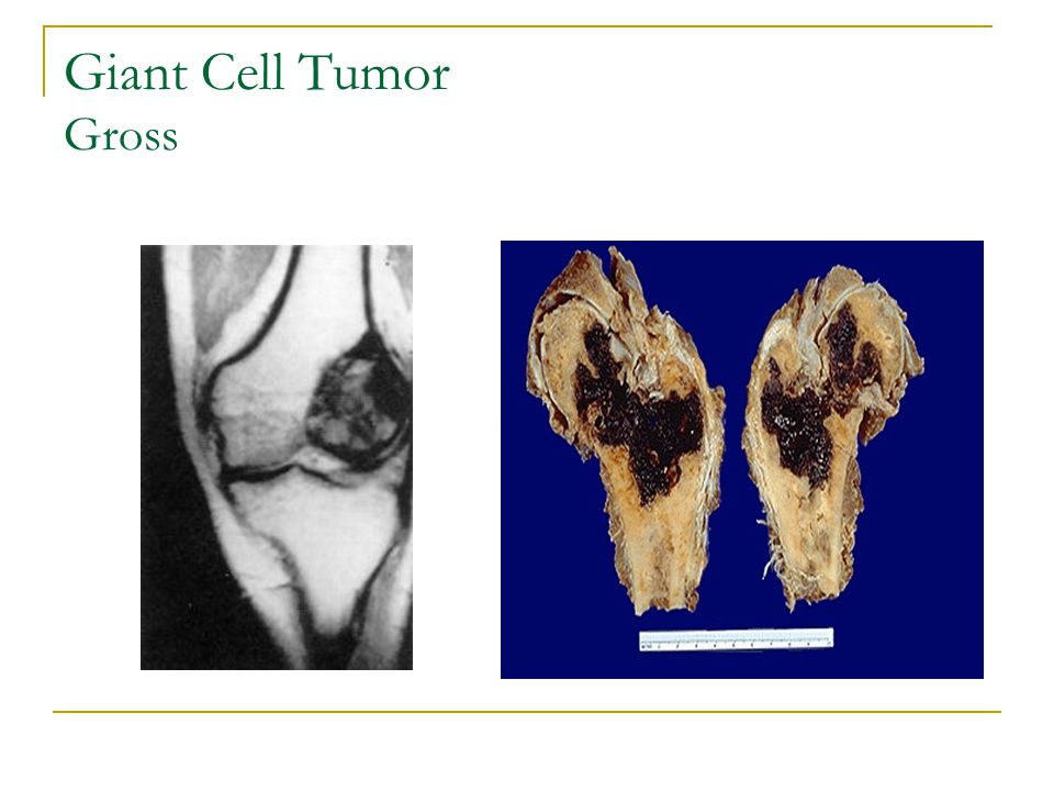 Giant Cell Tumor Gross